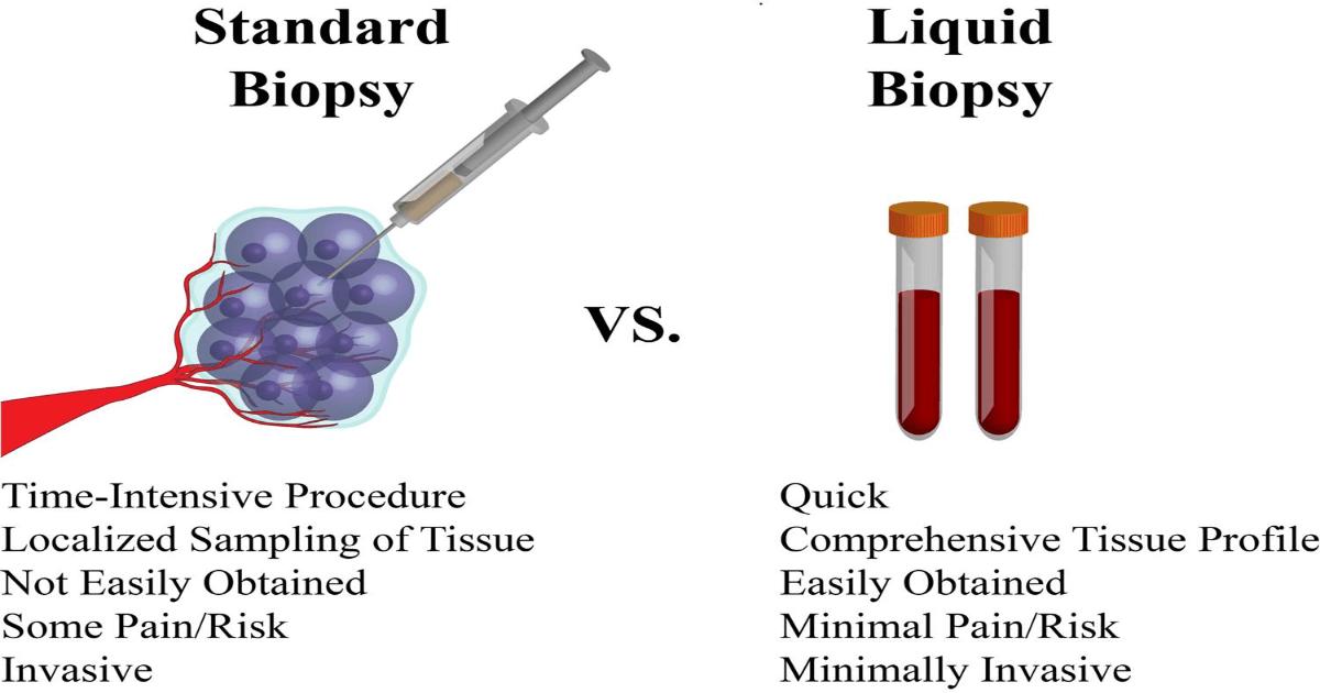 Biopsia standard vs. biopsia lichidă