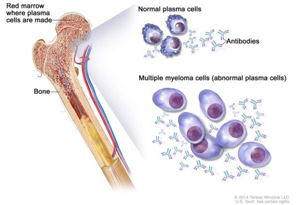 mecanism aparitie mielom multiplu