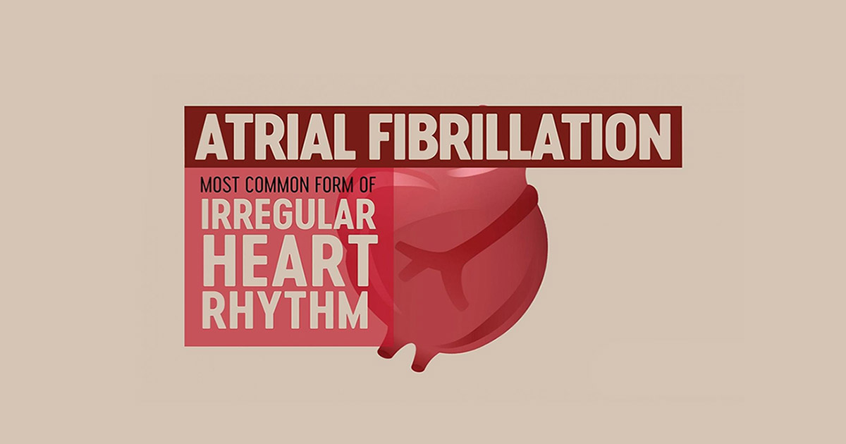 fibrilația atrială ritm cardiac rapid neregulat