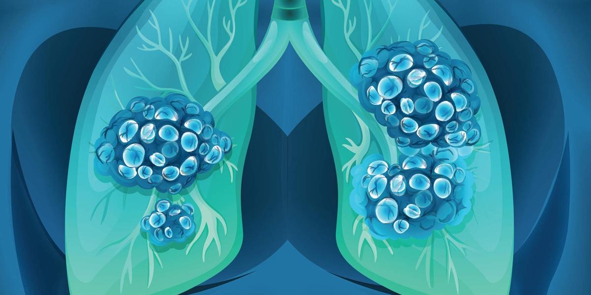 NCSLC nivolumab ipilimumab chimioterapie cancer pulmonar incarcatura mutatii