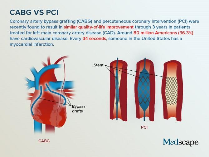Revascularizarea miocardică prin bypass sau plasarea unui stent