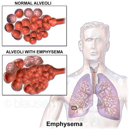 emfizem-alveole-normale-patologic
