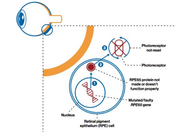Degenerarea celulelor fotoreceptoare