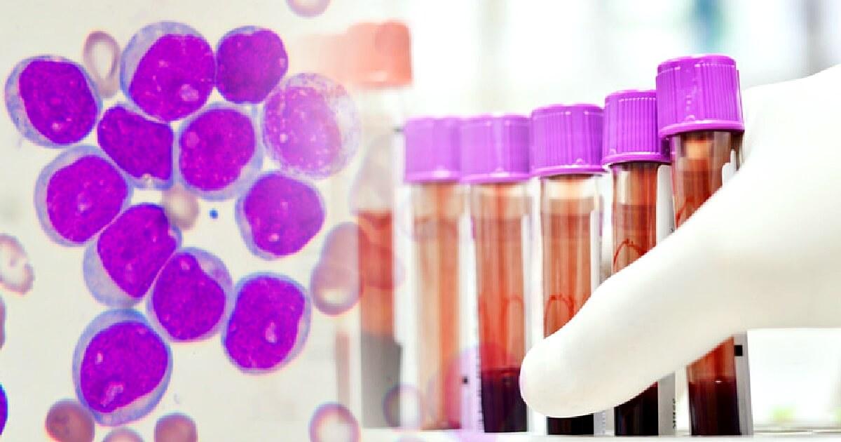 ibrutinib terapie car-t leucemie limfocitara cronica