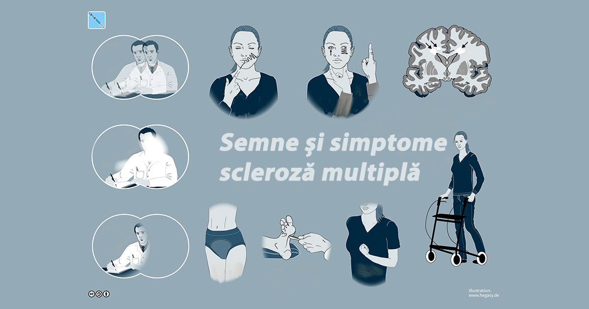 simptome de scleroză multiple pierdere în greutate)