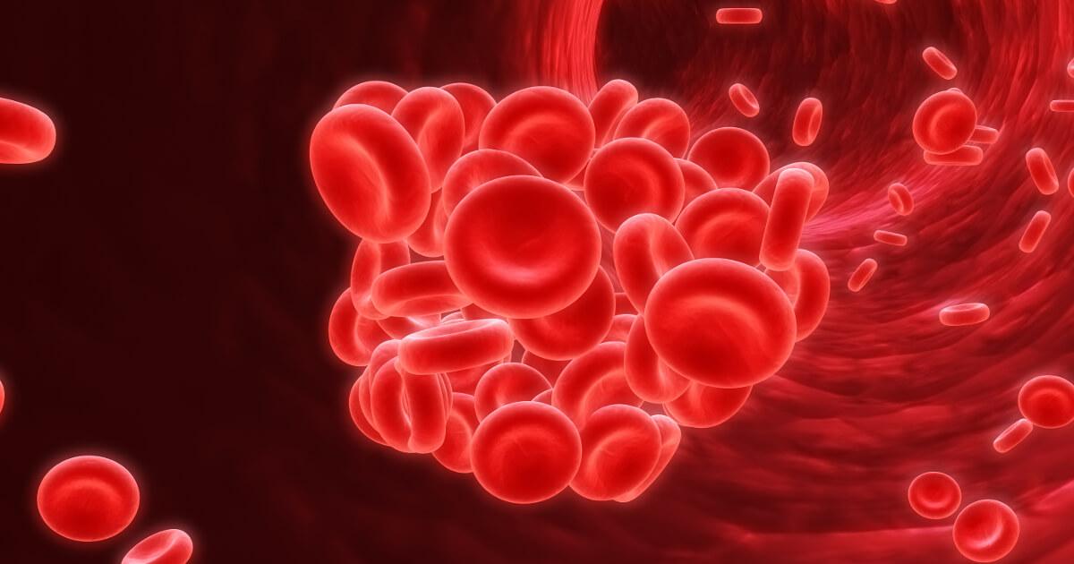 tromboembolism cancer
