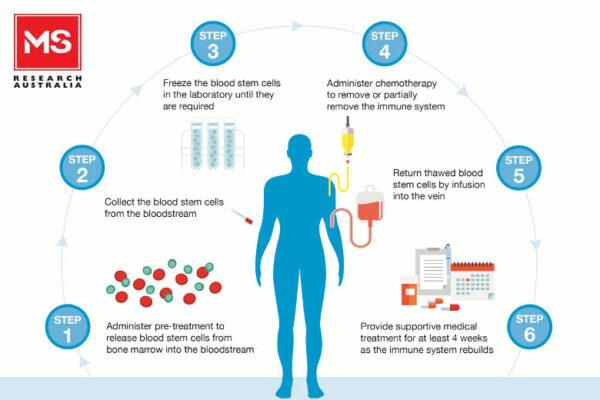 Transplant celule stem scleroza multipla