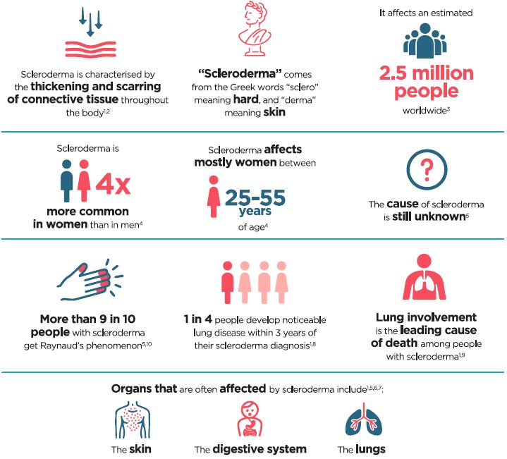 Infografic sclerodermie