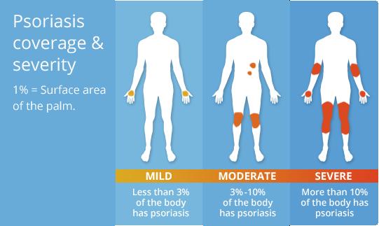 Procentul de piele afectată în psoriazis