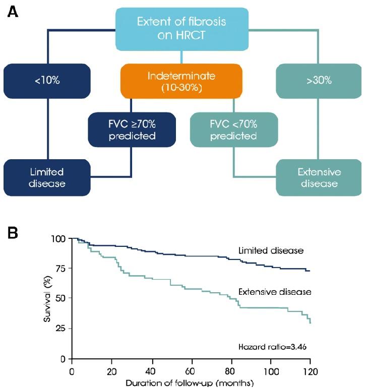 Sistemul de evaluare a supraviețuirii pacienților cu sclerodermie în funcție de gradul de fibroză pulmonară vizibil la HRCT. Boala pulmonară interstițială extinsă este un predictor important al mortalității.