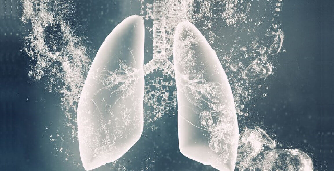 Boala pulmonara interstitiala asociata sclerodermiei