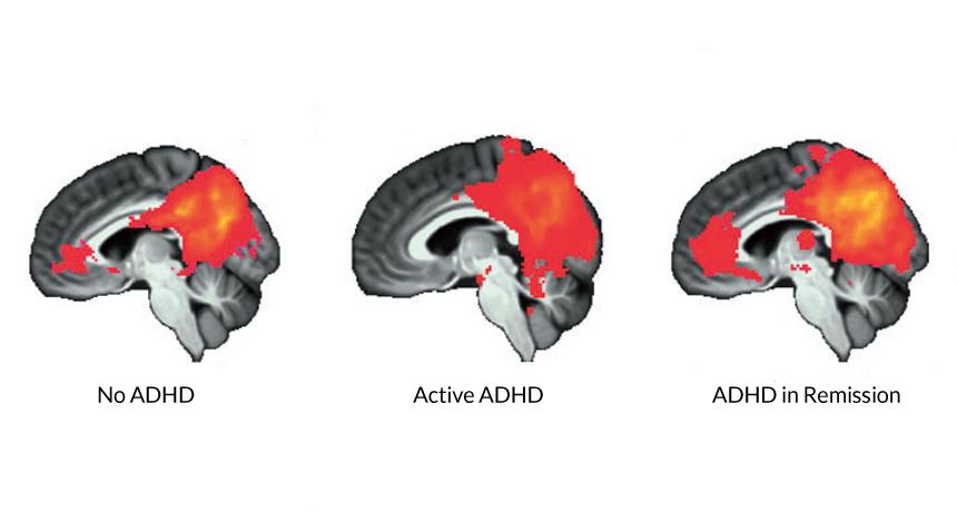Aspect cerebral în cazul: absenței ADHD, activității bolii, ADHD în remisie