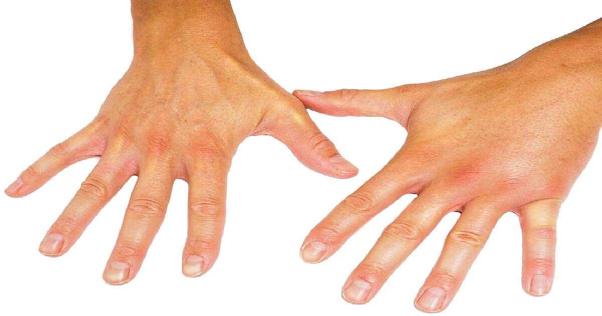 scleroza bolilor articulare