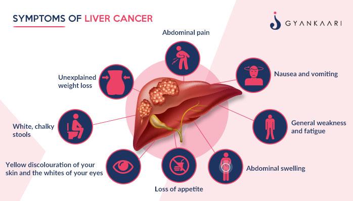 Simptomatologia prezentă în cancerul hepatic