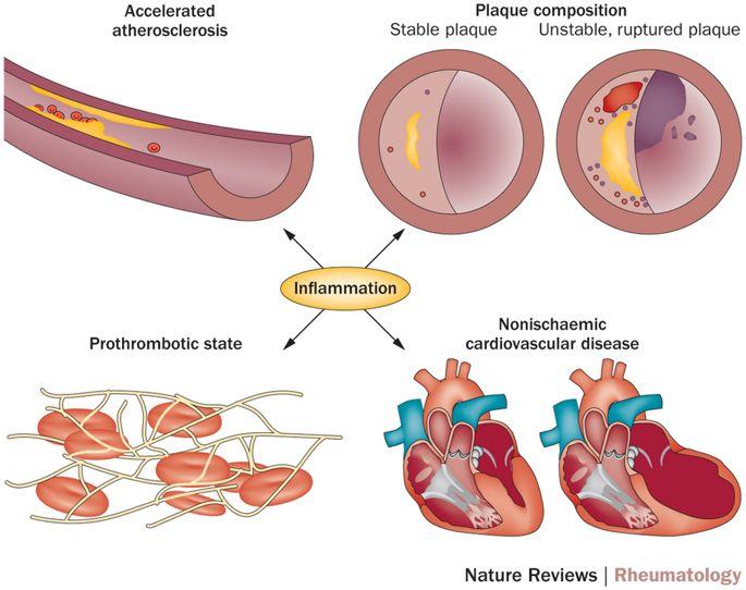 Ateroscleroză accelerată în artrita reumatoidă