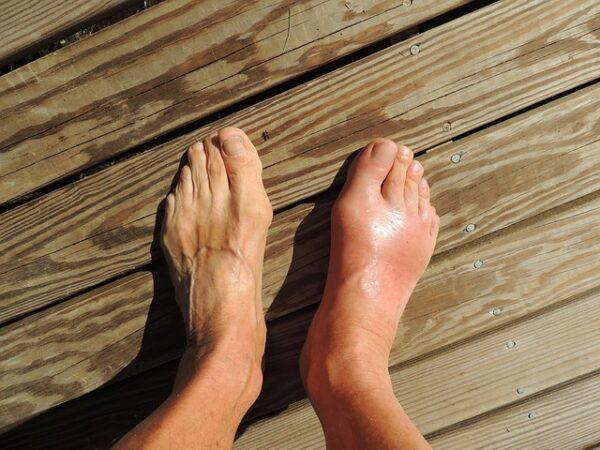 Aspect atac gută: inflamație articulației metacarpotarsiană