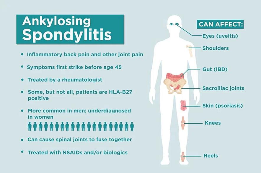 infografic spondilita anchilozanta simptome