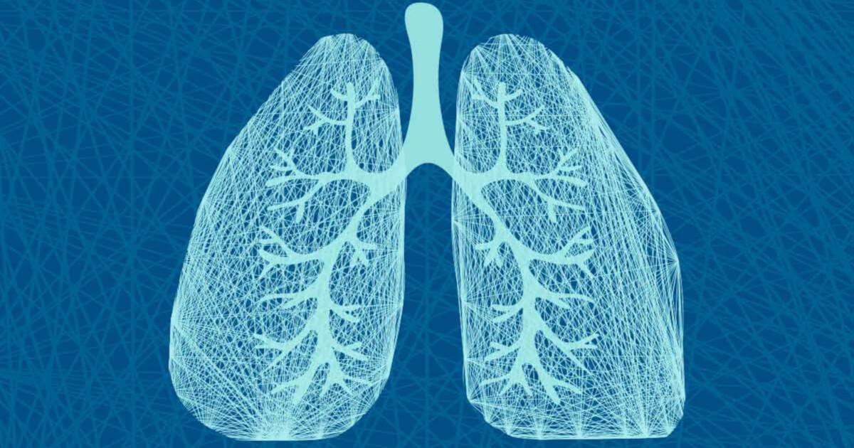 Imaginea ilustrează plămânii - cancerul pulmonar