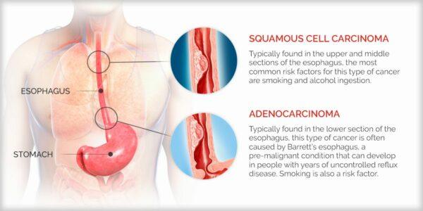 Tipurile de cancer esofagian