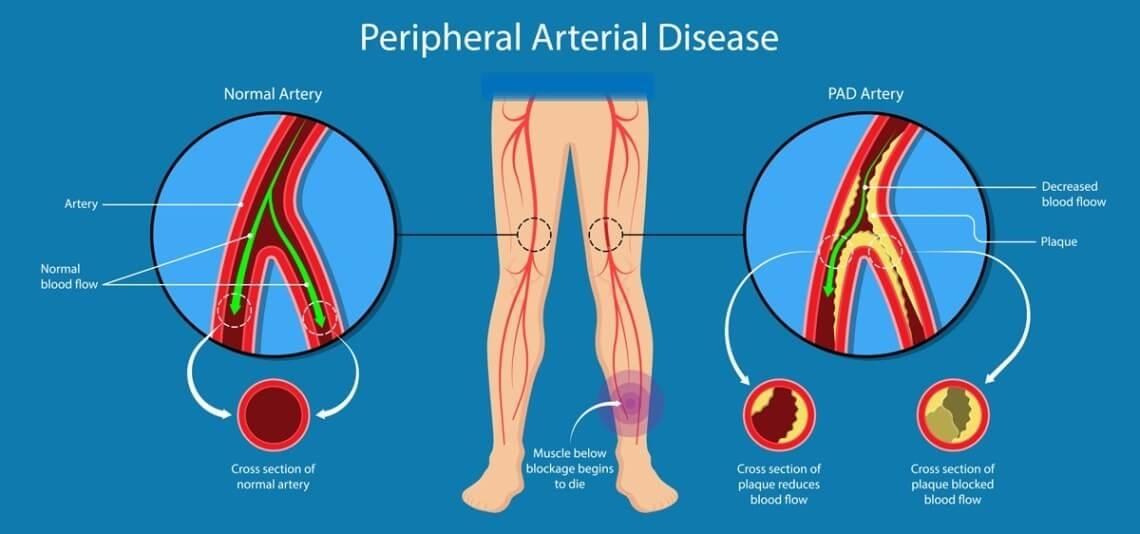 Afectarea aterosclerotică in boala vasculara periferica