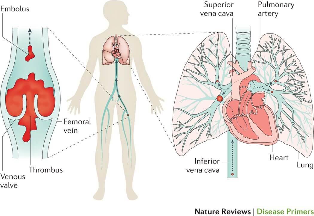 Mecanismul de apariție a emboliei pulmonare în urma migrării embolului din tromboza venoasă profundă.
