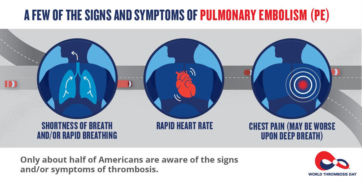 Simptomatologia emboliei pulmonare