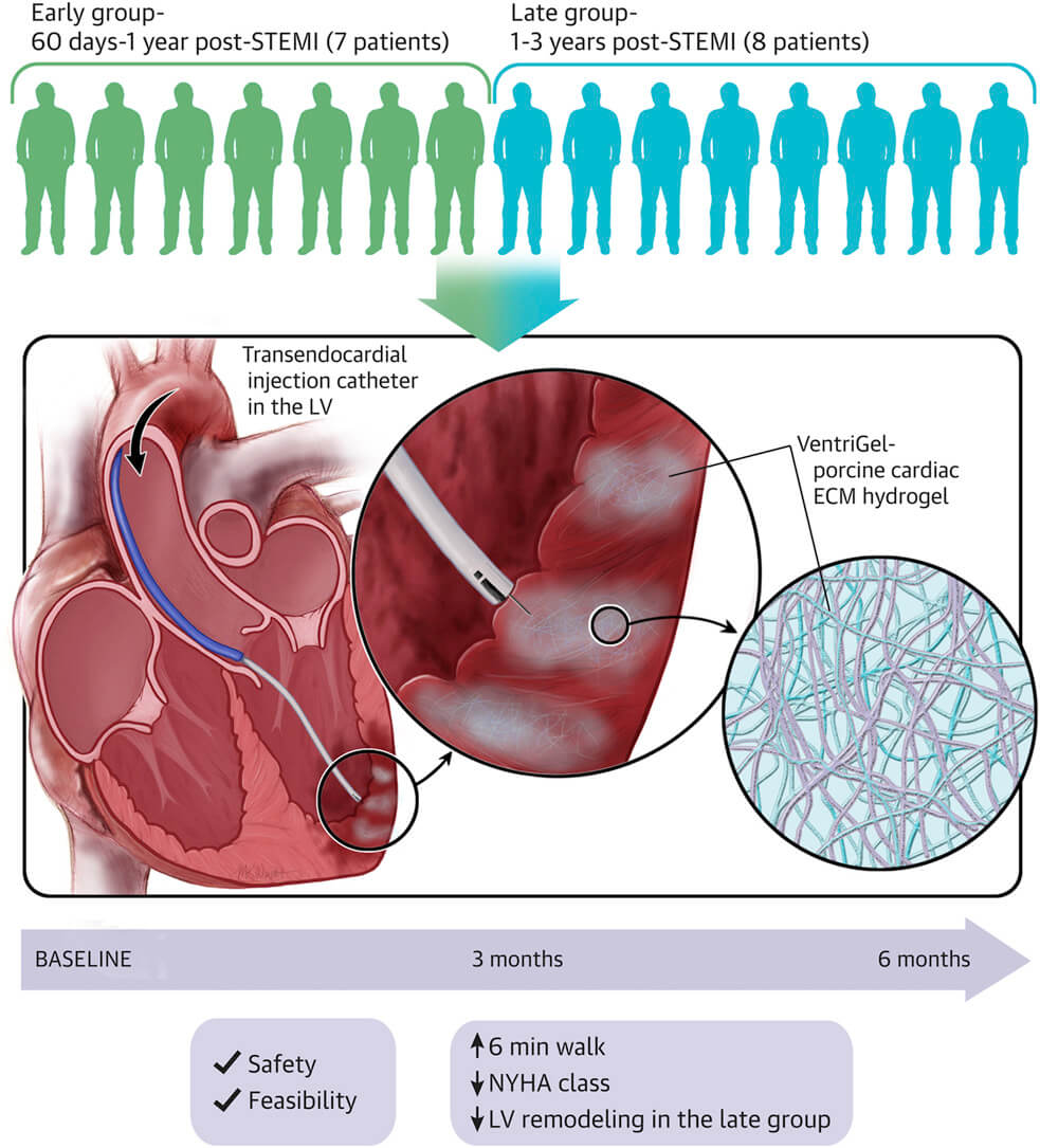 Studiu clinic - injectare intracardiacă de hidrogel VentriGel