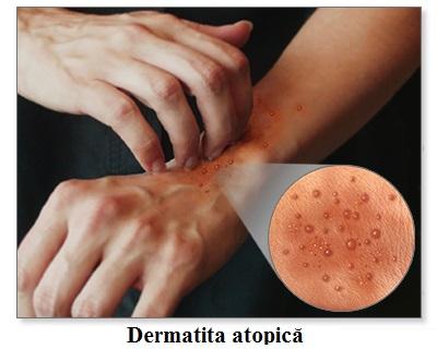 Aspectul pielii în dermatita atopică