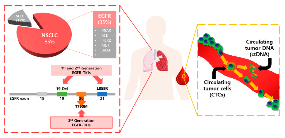 Biopshie lichida - cancer pulmonar non-microcelular