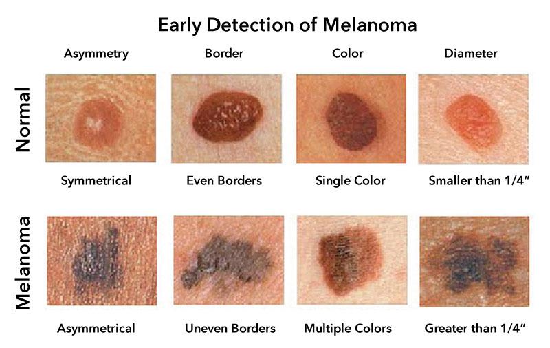 Detecția precoce a melanomului prin recunoașterea semnelor clinice caracteristice - metoda ABCD