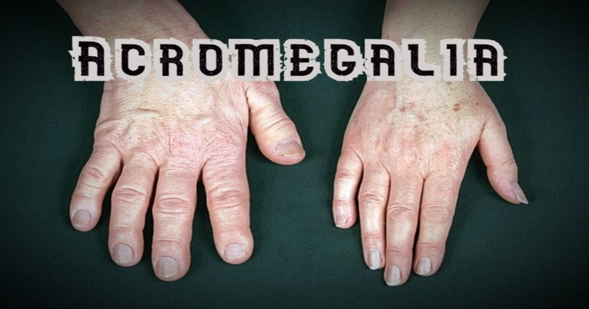 boală articulară artropatică endocrină