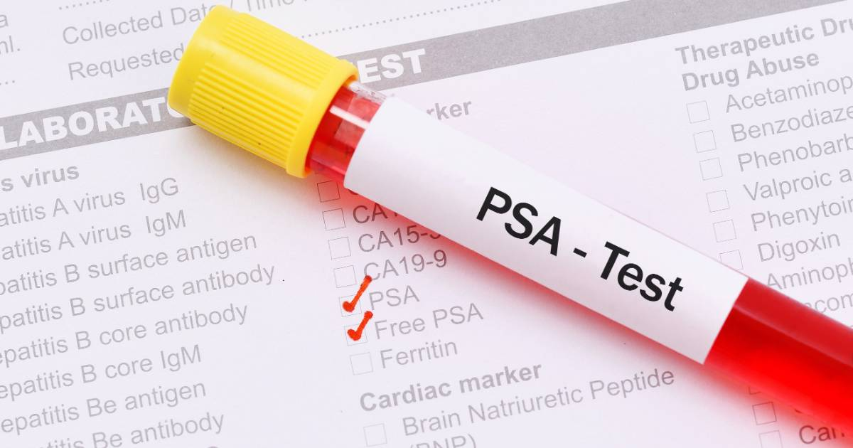 Testare PSA-Prostate Specific Antigen
