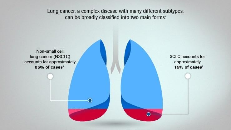 Clasificarea cancerului pulmonar