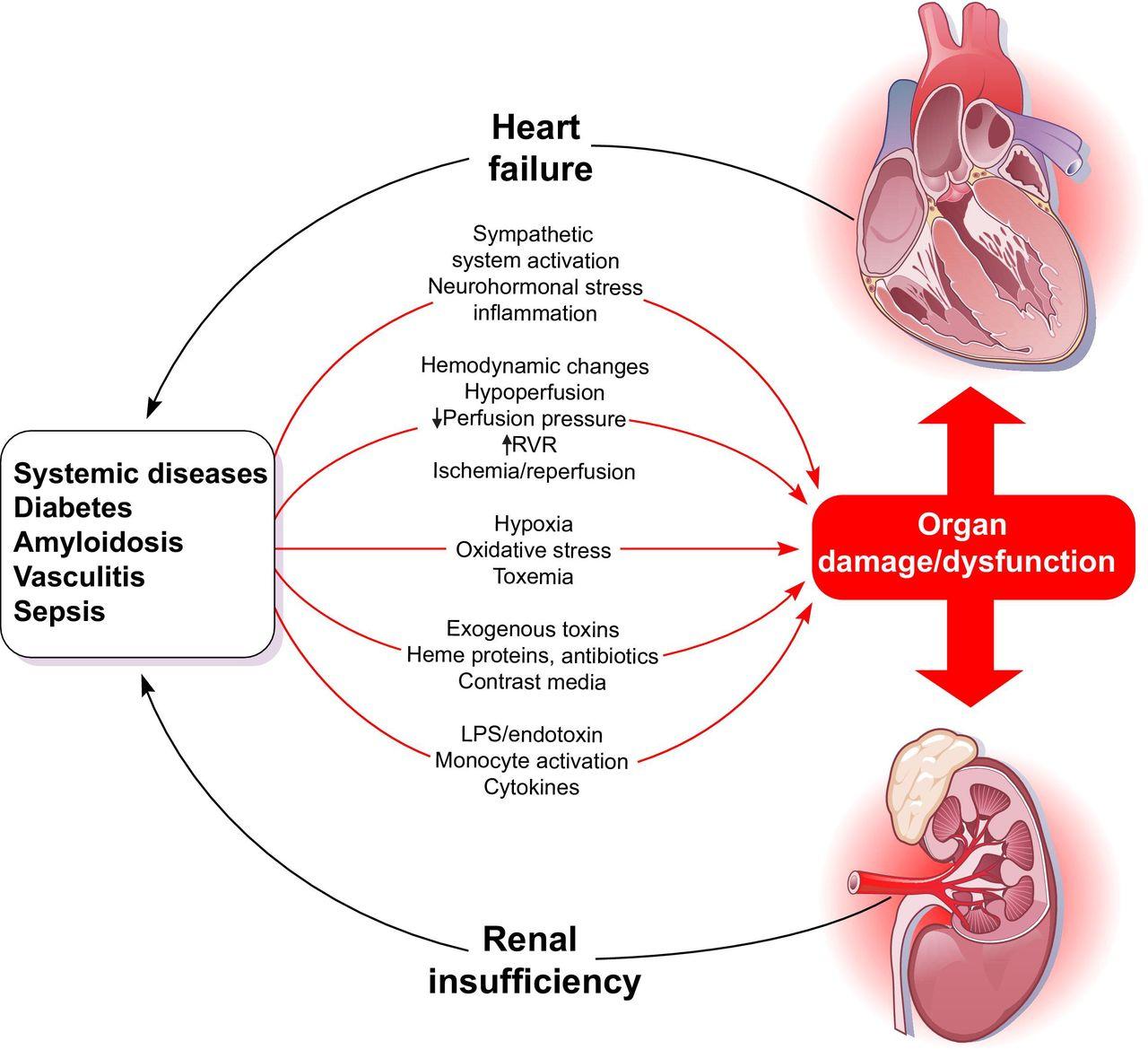 Ilustrarea mecanismelor sindromului cardiorenal
