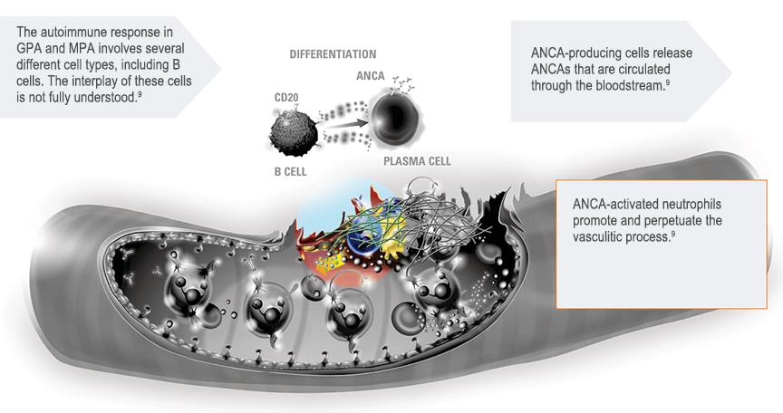 cticorpilor ANCA în mecanismul de autoperpetuare a inflamației vasculare în GPA și MPA.