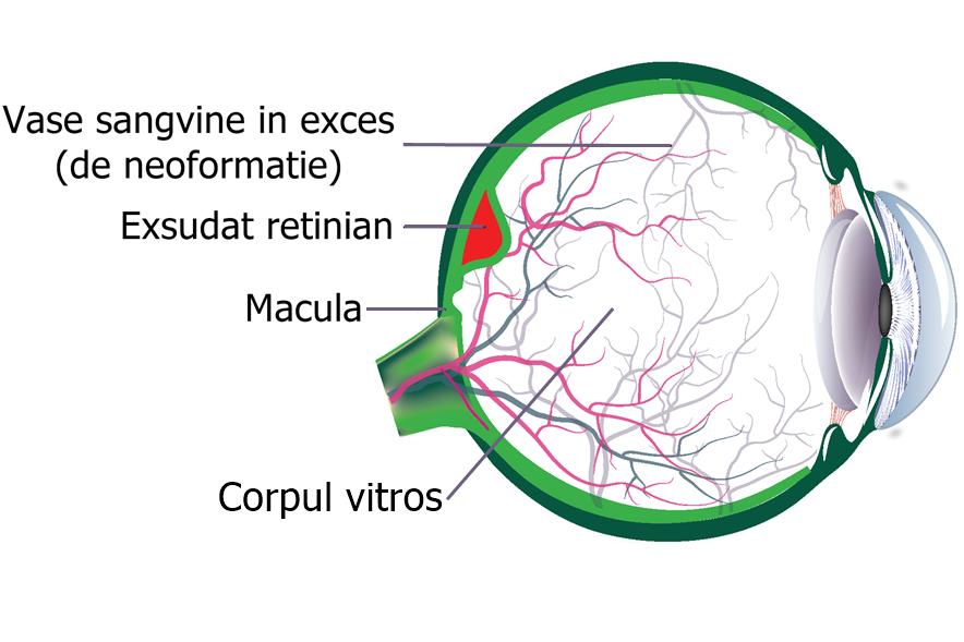 structura oculara si modificarile cauzate de degenerescenta maculara legata de varsta neovasculara