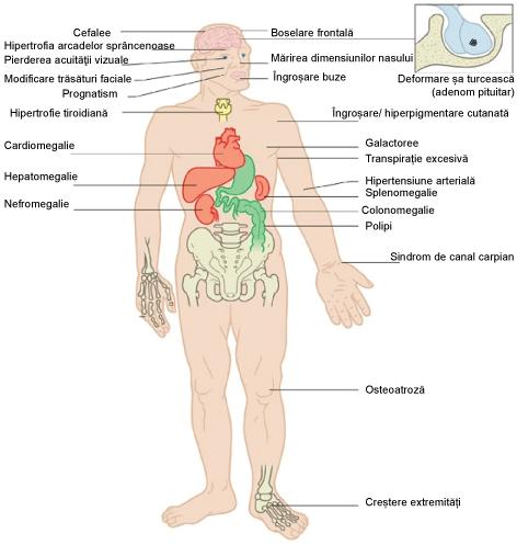 Corp uman cu legături către simptomele principale ale acromegaliei