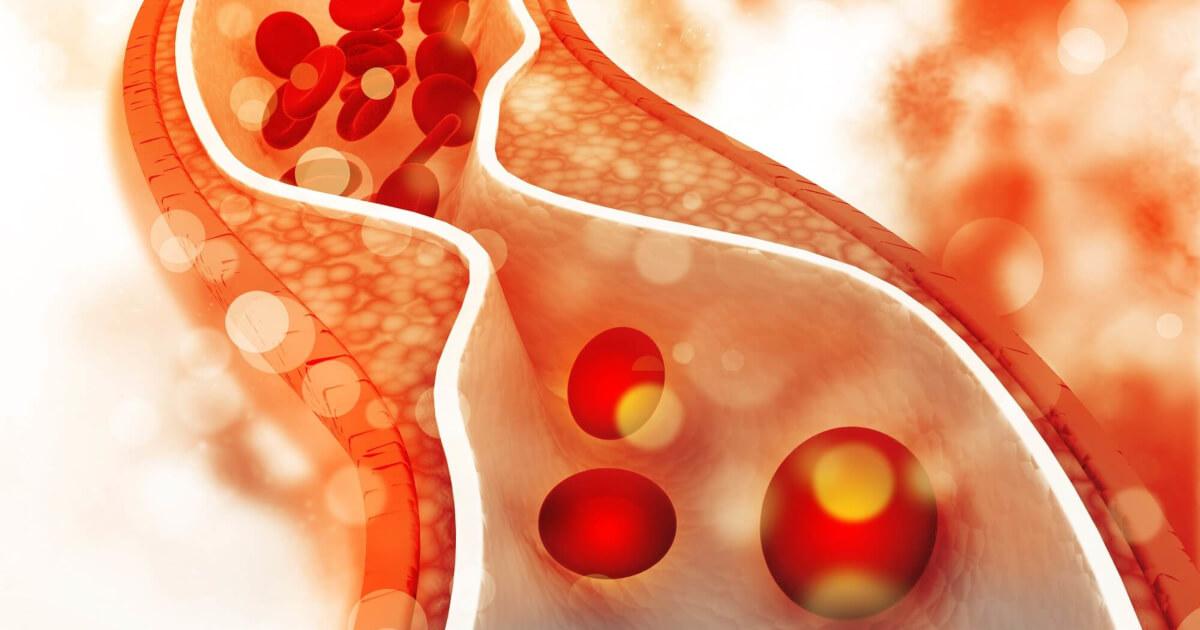 Afectare vasculară în hipercolesterolemia familială