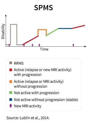 Grafic explicativ scleroza multiplă secundară progresivă