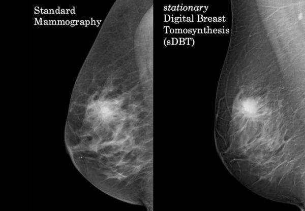 Mamografie digitală comparație mamografie cu tomosinteză