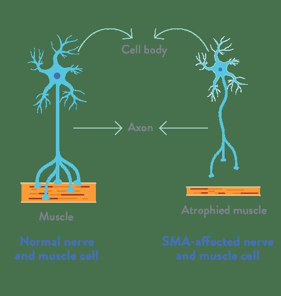 Neuron motor și țesut muscular normal versus neuron motor afectat și țesut muscular atrofiat în atrofia musculară spinală