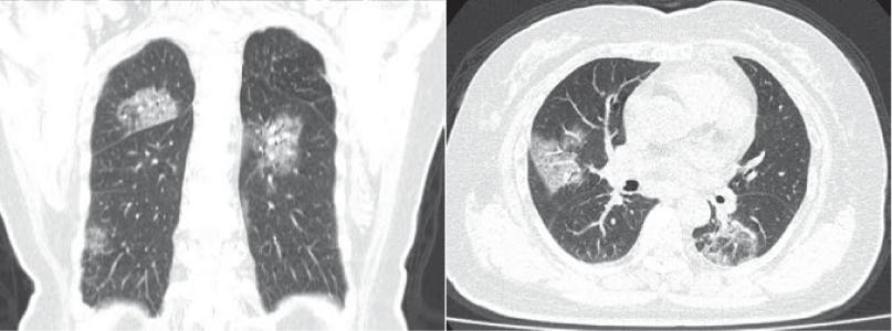 Imagine CT afectare pulmonară SARS-CoV-2.