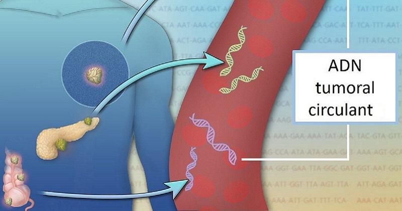 ADN tumoral circulant, biopsie lichida