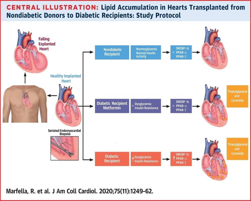 Protocol studiu acumulari lipidice la cordul transplantat