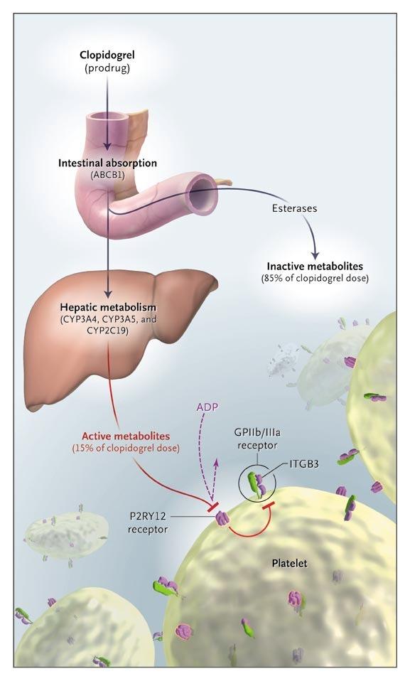 metabolism clopidogrel promedicament activat hepatic antiagregare plachetară