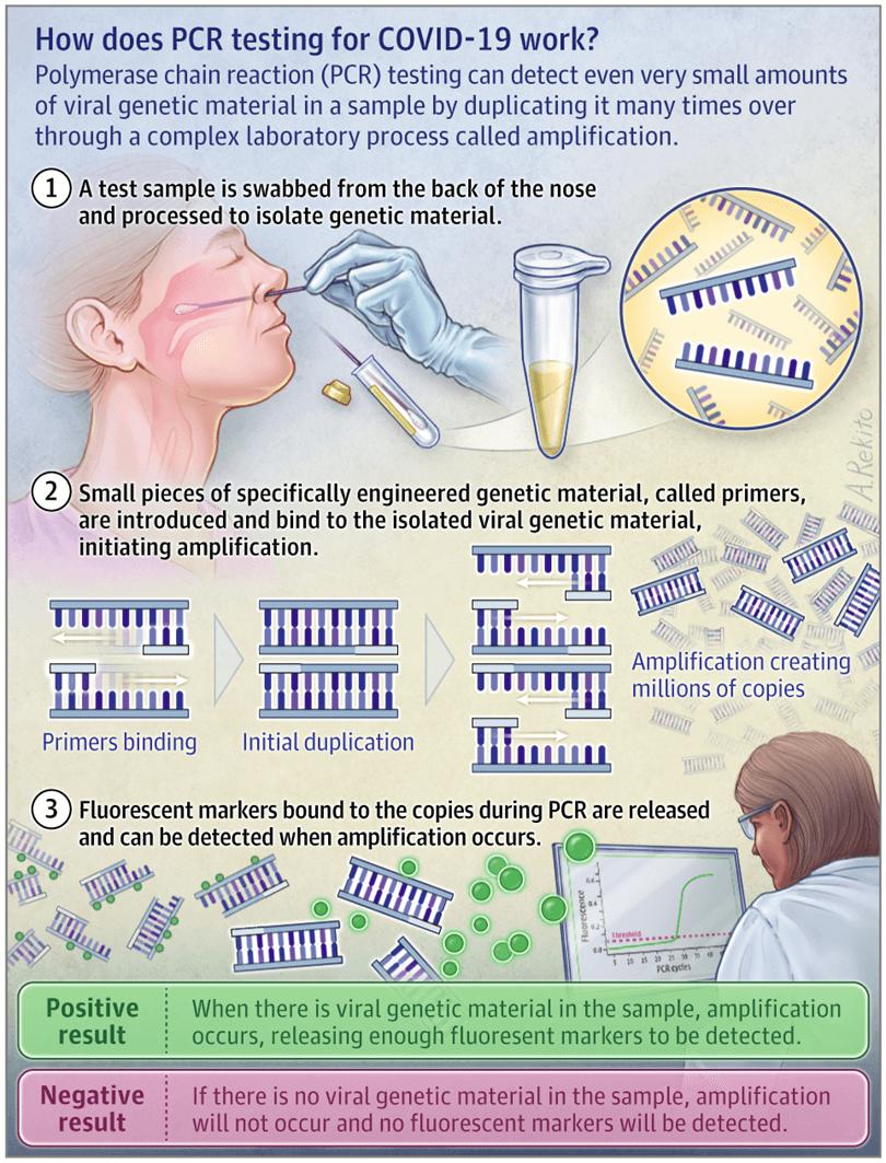 Etapele realizării PCR