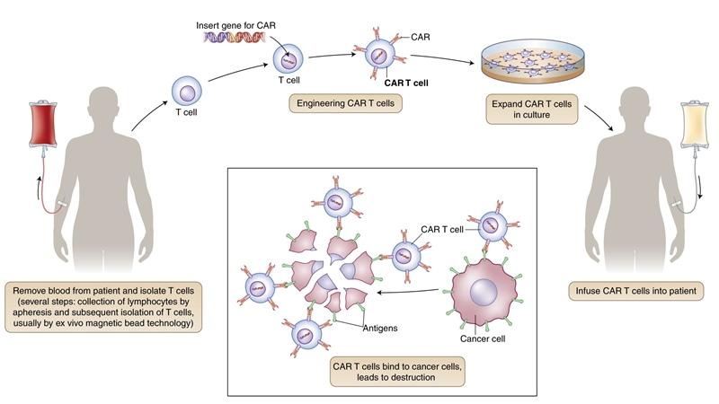 mecanism obținere terapii celulare cancer CAR T Kymriah