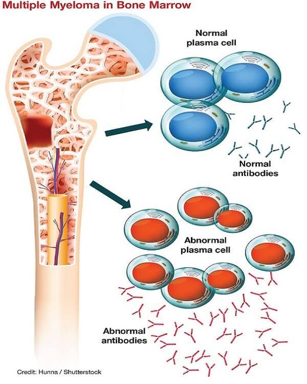 mielomul multiplu la nivelul maduvei osoase hematogene mecanism apariție plasmocite anormale