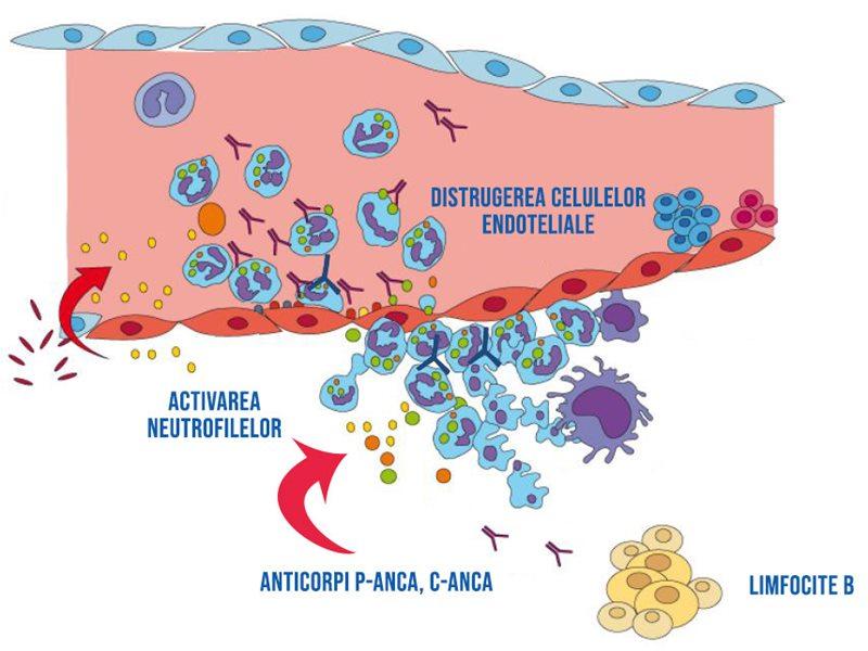 Mecanismul prin care apar vasculitele ANCA-pozitive