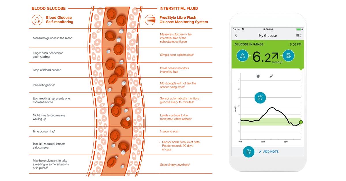 Monitorizarea glicemiei cu ajutorul dispozitivului FreeStyleLibre